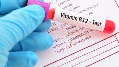 YORGUNLUĞUNUZUN NEDENİ B12 EKSİKLİĞİ Mİ?
