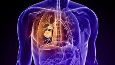Akciğer kanserinde büyük başarılar yakın mı?